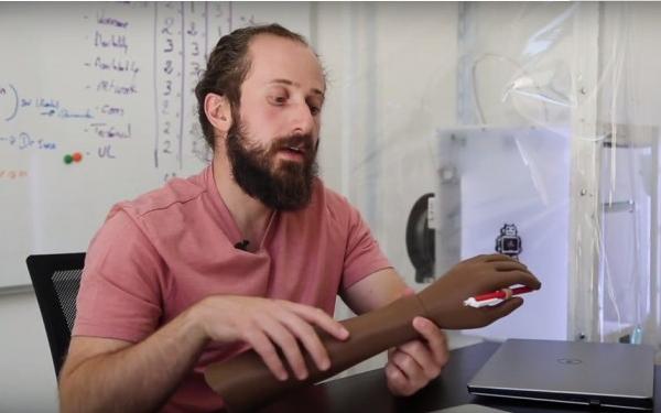约旦医院用3D打印假肢来治疗叙利亚战争受伤难民
